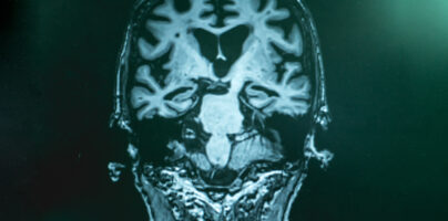 Study finds Amyloid Blood Tests for May Cut Need for PET in Half